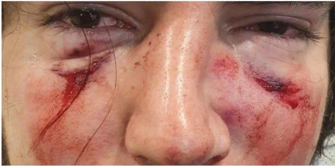 Suspenden a jugadores de rugby tras ser acusados de golpear brutalmente a un joven