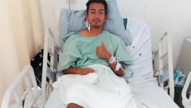 Amputan una pierna a un futbolista mexicano tras recibir el impacto de un rayo
