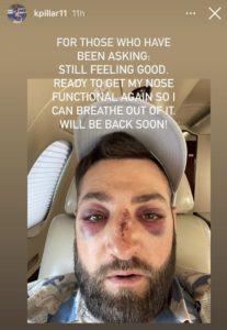 Así quedó el rostro del jugador de la MLB que recibió un pelotazo a más de 150 kilómetros por hora